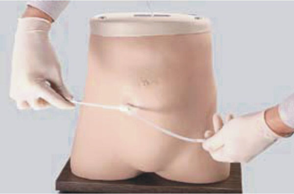 KAR/F1 Peritoneal Dialysis Model